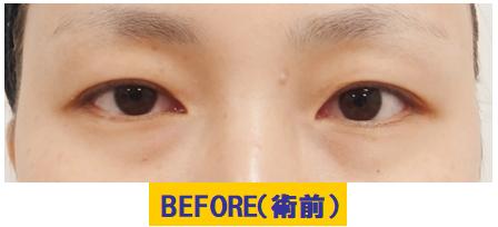 中等度未満の腫れぼったい若年性眼瞼下垂の例