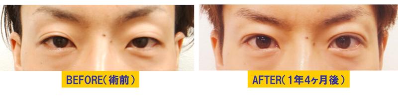 瞼のくぼみを伴う眼瞼下垂01