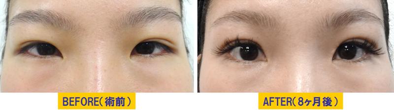 腫れぼったい瞼の眼瞼下垂03