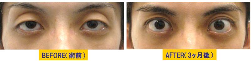 瞼のくぼみと加齢による眼瞼下垂1