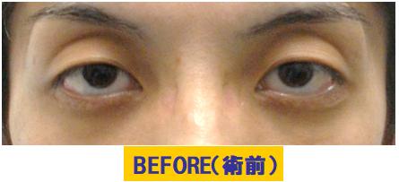 クボミと加齢要素が加わった眼瞼下垂の例