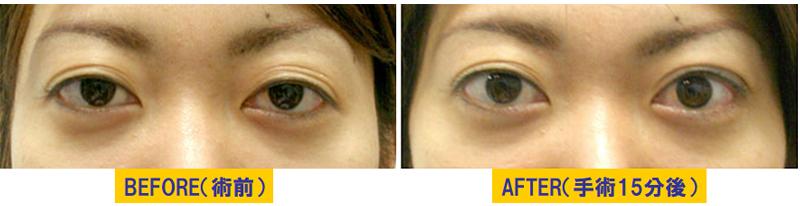 瞼の窪み&左右差がある眼瞼下垂02