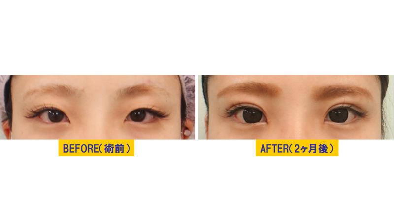 細目タイプ若年性眼瞼下垂アイキャッチ